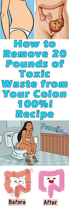 How to Remove 20 Pounds of Toxic Waste from Your Colon Recipe According to medical experts, the food digestion lasts from 24 to 44 hours. Natural Health Remedies, Natural Cures, Natural Healing, Health Tips, Health And Wellness, Health Fitness, Health Benefits, Health Care, Health Articles