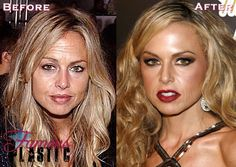 Celebrity Botox Pictures - Photos of Stars Before and After Botox Injections