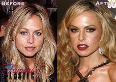 rachel zoe antes y despues de la cirugia con botox