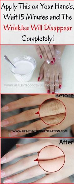 Apply This In Your Hands, Wait 15 Minutes And The Wrinkles Will Disappear Completely