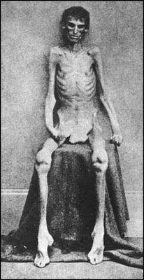 American Civil War concentration camp victim