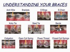 Understanding your Braces