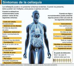 La mala alimentación aumenta los índices de celiaquía