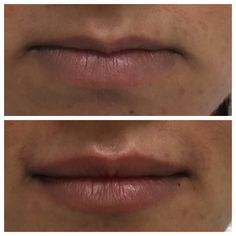 Lip Injections #cosmetic_injections #wrinkle_injections #cosmetic_doctor #lip_injections #lipfillers #dermal_fillers #lip_augmentation