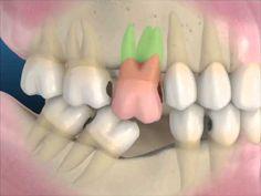 Directorio Odontológico: SALUD BUCAL: Consecuencias de la Pérdida de un Diente