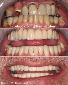 New Smile, new life 🙂 Have a Bright smile! Dental Bridge,Crowns Diamant Dent New Smile, new life :] Have a Bright smile! Dental Implant Surgery, Teeth Implants, Dental Care, Smile Dental, Smile Teeth, Dental Bridge Cost, Teeth Whitening That Works, Dental Crowns