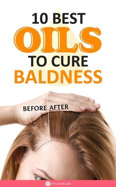 Best Oils To Cure Baldness - Top Trends Argan Oil For Hair Loss, Best Hair Loss Shampoo, Biotin For Hair Loss, Biotin Hair, Hair Shampoo, Why Hair Loss, Prevent Hair Loss, Hair Cure, Life Tips