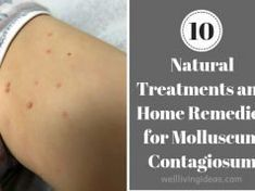10 Natural Home Remedies For Curing Infected Keloid On Nose Piercing Nose Piercing Care, Piercings, Keloid Piercing, Piercing Aftercare, Ayurveda, Nail Fungus, Health, Piercing