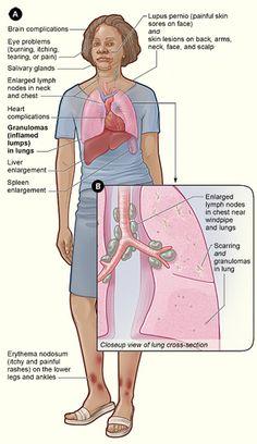 Detailed description of Sarcoidosis