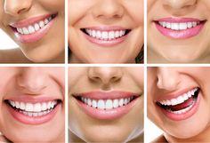 9 consejos +1 recomendación después de tu tratamiento de endodoncia