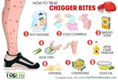 """how to treat chigger bites """"They tore my butt up! Top 10 Home Remedies, Natural Home Remedies, Natural Healing, Red Bug Bites, Bug Bite Relief, Vicks Vapor Rub, Insect Bites, Alternative Health, Health Remedies"""