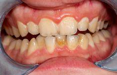 Osvojte si metody, jak odstranit zubní plak a kámen v pohodlí domova. Jen tak udržíte zuby v kondici - AAzdraví.cz