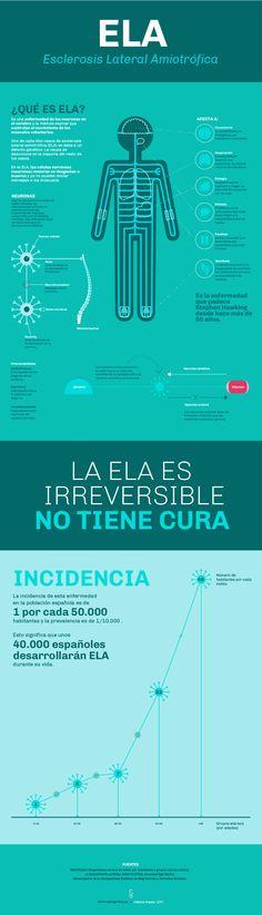 La ELA es una enfermedad que afecta a 1 por cada 50.000 habitantes españoles y debe de dejar de ser una enfermedad rara, para pasar a ser una enfermedad conocida y con conciencia social de la importancia en investigar para hallar una cura.  #ELA #infografia