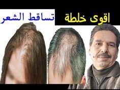 1a4441612 الوصفة الاولى عالميا لتطويل الشعر في 6 ايام جمال الصقلي jamal skali -  YouTube