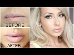 GETTING LIP INJECTIONS!! Juvederm (lip injections) before and after - YouTube