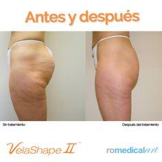 Antes y después VelaShape II https://www.facebook.com/photo.php?fbid=539230852840132&set=p.539230852840132&type=1&theater
