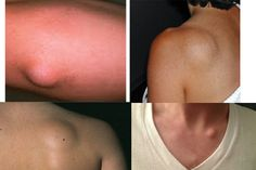 Quick And Easy Remove Fat Tissue In A Completely Natural Way. A lipoma is a benign tumor composed of body fat. It is the most common benign form of soft Home Health, Health Tips, Health And Wellness, Natural Home Remedies, Natural Healing, Lipoma Removal, Herbal Cure, Alternative Health, Natural Treatments