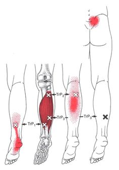 Soleusmuskel | The Trigger Point & Referred Pain Guide