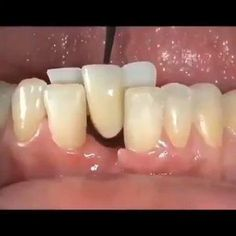 Dental Hygiene School, Dental Humor, Dental Teeth, Oral Hygiene, Dental Care, Dental Surgery, Dental Implants, Dental Photos, Dental Videos