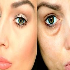 Causes and How It Passes Under Eye Bruises? Face Care, Skin Care, Gm Diet Plans, Friday Workout, Face Yoga, Pinterest Hair, Natural Cosmetics, Health Coach, Herbalism