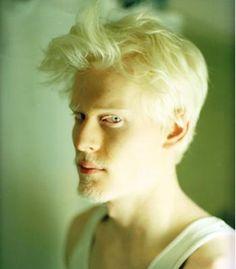 Black Dravidian albino - Google Search