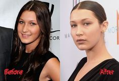Bella Hadid Plastic Surgery - Before and After Nose Job, Lip Fillers, Brow Lift and Breast Implants