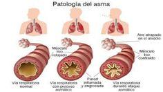 patologia del asma dia mundial fisioterapia respiratoria centro guna salud y bienestar