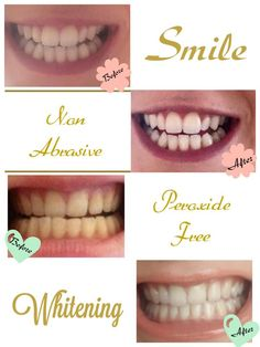 Amazing whitening toothpaste that works really well and doesn't damage your teethFB: HM Cosmetic & Anti Ageing Products  Email : helenamonaher@gmail.com  instraram; hmbeauty90  Snapchat: hmbeauty90