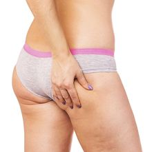 Top Tips And Amazing Advice To Get Rid Of Cellulite. Look In The Mirror, Cellulite, Gym Shorts Womens, Tej, Beauty, Beauty Illustration