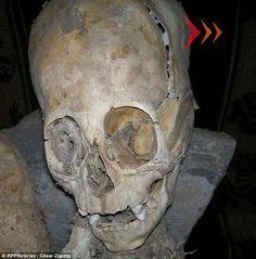 Ossada encontrada em Andahuaylillas - Quispicanchi no Peru - a cabeça tem 50cm e as cavidades dos olhos são maiores que a dos seres humanos - arquivo pesquisa Urandir http://www.ufologiabr.com.br/pesquisas/evidencias-fisicas-concretas-de-seres-nao-humanos-na-terra