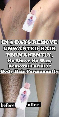 Today I will share an amazing unwanted hair removal treatment with which you can. - Today I will share an amazing unwanted hair removal treatment with which you can remove facial and - Chin Hair Removal, Permanent Facial Hair Removal, Upper Lip Hair Removal, Underarm Hair Removal, Electrolysis Hair Removal, Remove Unwanted Facial Hair, Hair Removal Diy, Hair Removal Remedies, Hair Removal Methods