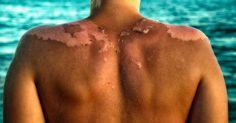 Často používáte opalovací krémy, když trávíte čas na slunci? Co víc ohrozí vaše zdraví – slunce nebo krémy? Zjistěte, co na to říkají odborníci.