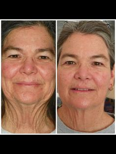 More real results just keep rolling in to Nerium International.
