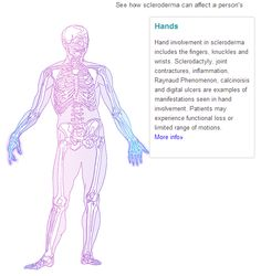 Scleroderma (Systemic Sclerosis): How It Affects The Body:  Hands