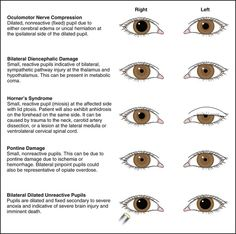 pupil anomalies + adie's + horner's + argyll robertson - Google Search