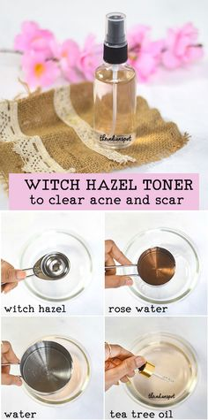 DIY: WITCH HAZEL TONER TO CLEAR ACNE AND SCARS | THEINDIANSPOT.COM