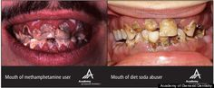 Diet Soda's Effect On Teeth -- Similar To Effects Of Meth, Crack Cocaine