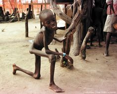 AJIEP, SUDAN: A young malnourished boy uses uses a tree to stand up 16 July at a feeding centre in the town of Ajiep, in the Bahr El Ghazal region of Southern Sudan. The famine situation is worsening in the region and the Sudanese government agreed 17 July to extend its one-month cease-fire for a further two months to facilitate aid operations. The UN World Food Program, who estimates that 1.2 million southern Sudanese are at high risk of starvation, is using the opportunity to fly in much…