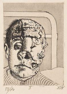 otto-dix-1924.040-SkinGraft