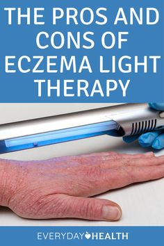 Discover why light therapy may be a good solution for people struggling to treat eczema — and the potential drawbacks of this approach.