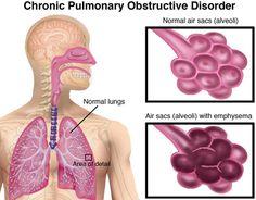 chronic obstructive pulmonary disease  #COPD  #chronicobstructivepulmonarydisease    http://www.omegaxl.com/blog/copd-omega-xl-helps/?GHW_affid=MLIFE