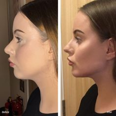 Cheek Fillers, Lip Fillers, Chin Fillers, Face Fillers Before and After Photos Cheek Fillers, Botox Fillers, Dermal Fillers, Cheek Injections, Cheek Implants, Eyebrow Cut, Chin Filler, Neck Liposuction, Botox Lips