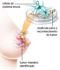 Uma vacina contra o câncer de mama