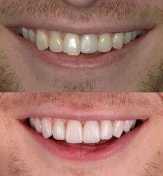 Dental Veneers, Porcelain Veneers, Front Teeth, Cosmetic Dentistry, White Teeth, Dental Implants, Tooth, Smile, Mirror
