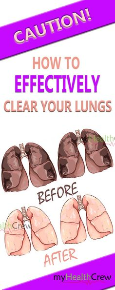 FOR ALL SMOKERS – HERE IS HOW TO EFFECTIVELY CLEAR YOUR LUNGS IN 72 HOURS! -