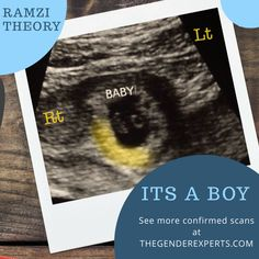 Confirmed Ultrasound Scans - A Collection of Boy and Girl Scans – The Gender Experts