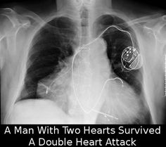 Man with two hearts survives double heart attack Interventional Radiology, Best Ghost Stories, Doctor Who Tumblr, Nurse Love, Low Blood Pressure, Heart Conditions, Two Hearts, Special People, Heart Attack
