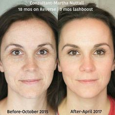 The change doesn't have to be drastic to make a gorgeous difference...radiant skin and lashes!  Good skin can be even better.  Results don't just happen and stop, if you continue to use the products, your results just continue to happen.  Zoom in - she has the R+F Glow!  Are you ready to take the 60 day challenge and wake up your skin with Rodan and Fields?  60 day, empty-bottle, hassle-free, money back guarantee says you'll love it.  #LoveYourSkin