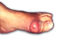 Get more information about Similar conditions of Corns and Calluses. Visit: www.welcomecure.com