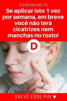 Eliminar cicatrices | Se aplicar isto 1 vez por semana, em breve você não terá cicatrizes nem manchas no rosto! | É superfácil, natural e você não gasta quase nada para fazer. Aprenda.